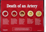Death of an artery